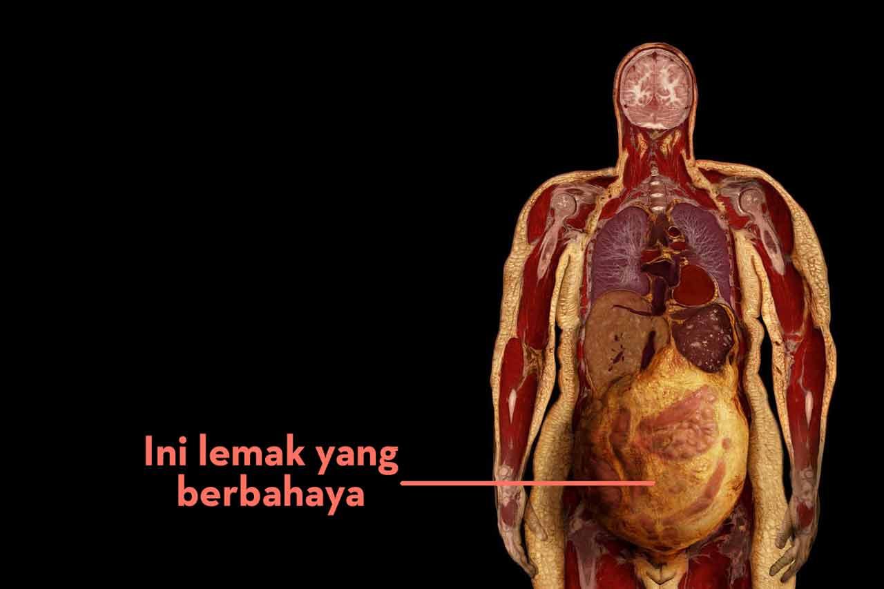 viseral-lemak-berbahaya