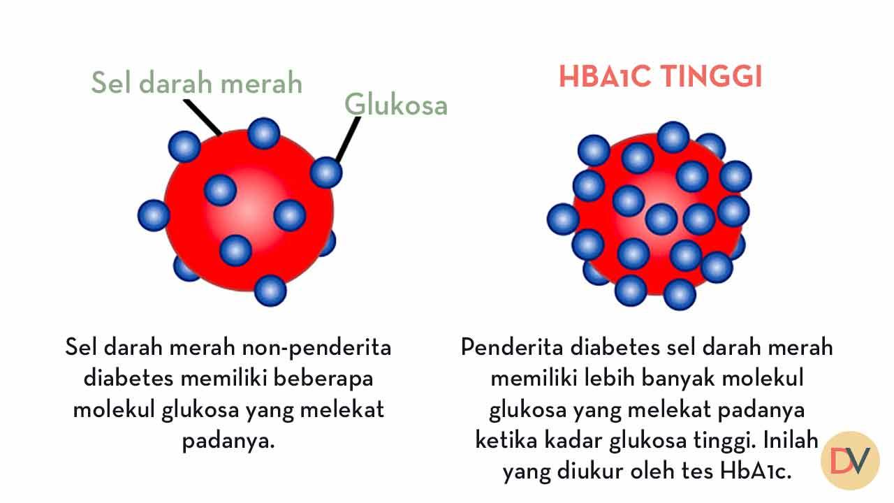 HBA1C-tinggi